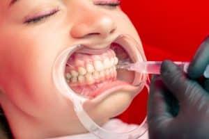 תביעת רשלנות רפואית ברפואת שיניים 2